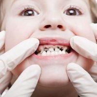 Настанови злої феї, сестри зубної феї :)  (лякалка)